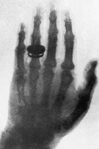 La prima radiografia della storia,  datata 23 gennaio 1896, è stata eseguita da Roentgen sulla mano di sua moglie