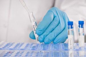 Test sierologico a campione